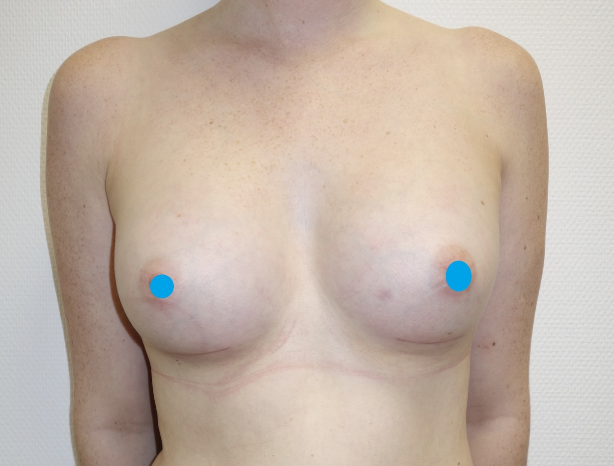 After-Breast Augmentation Surgery