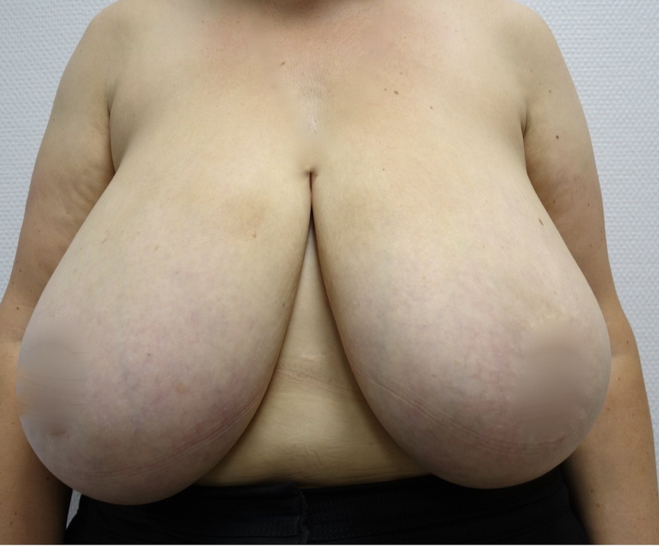 Before-Breast Reduction Surgery