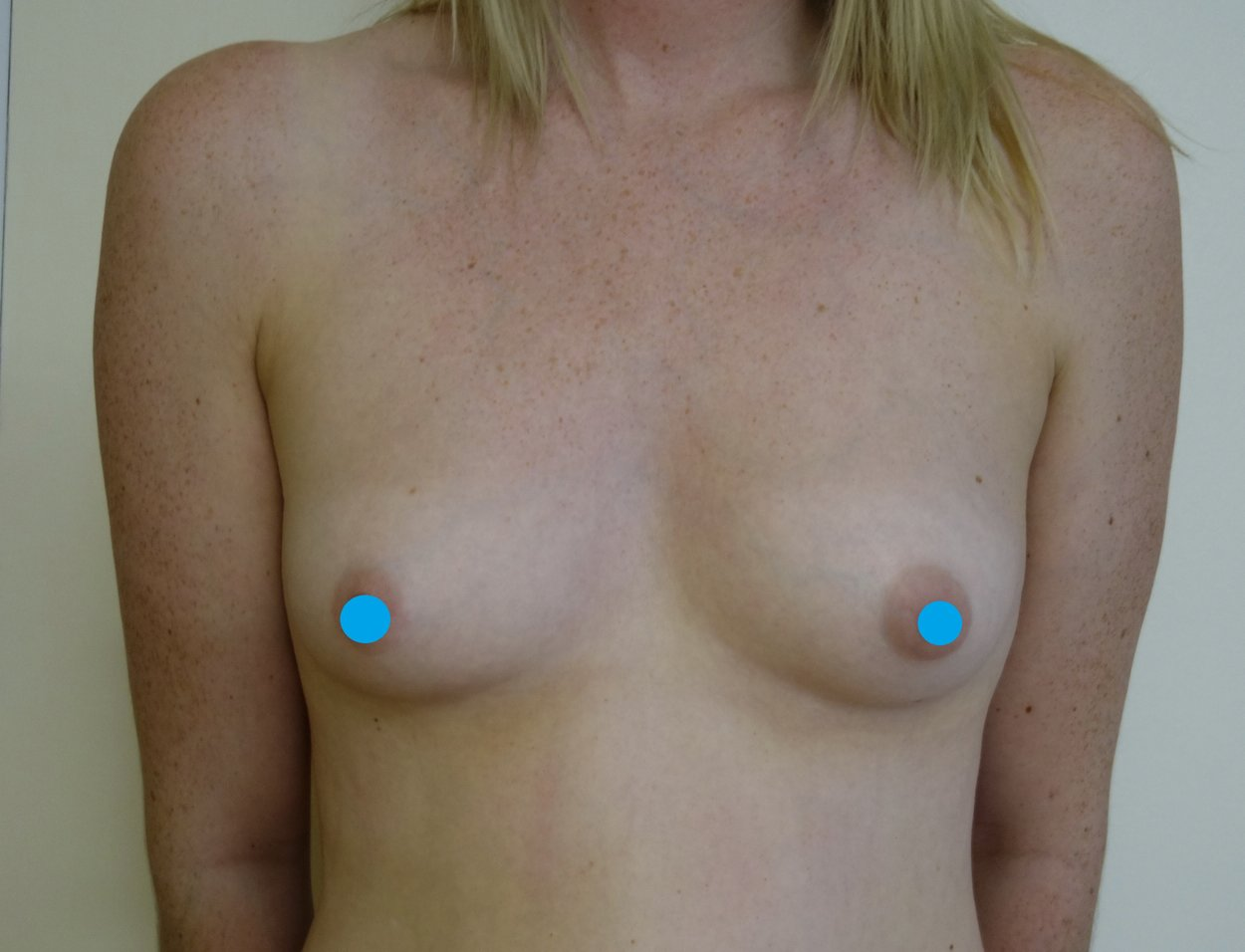 Before-Breast Augmentation Surgery
