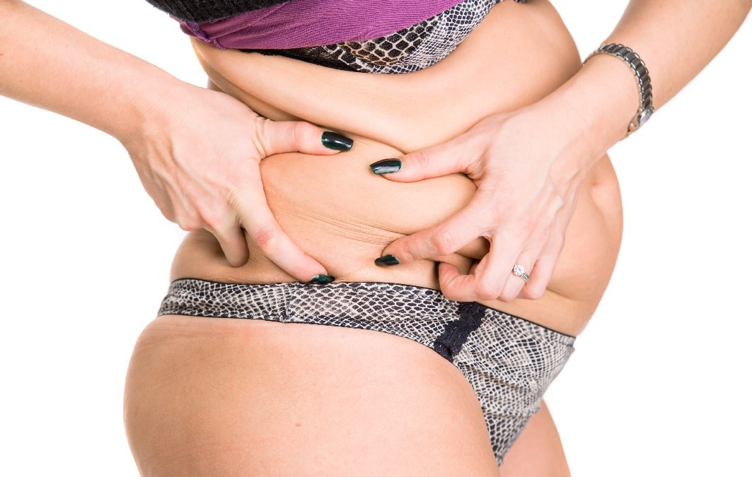 Your Essential Guide to the Tummy Tuck – From Manchester's Best Plastic Surgeons