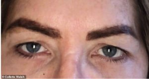 before upper eyelift surgery