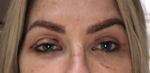 upper eyelift one week after