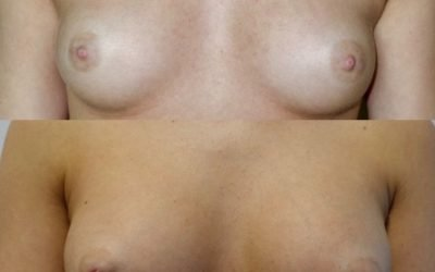 Breast Enlargement Manchester – All you need to know