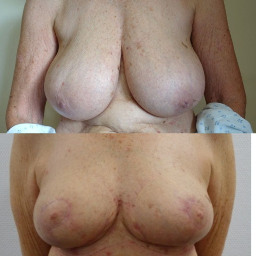 breast reduction and uplift