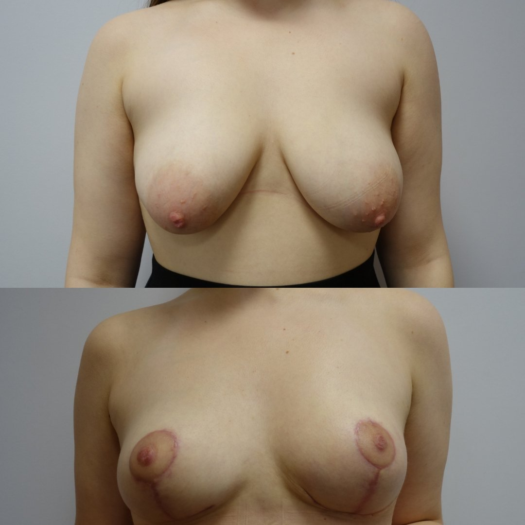 breast Surgery Results