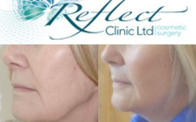 Full Facelift Guide for Manchester Patients