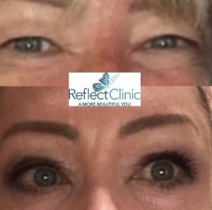 eyelift before and after