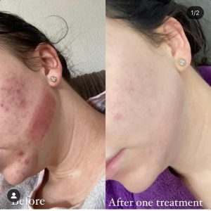 clearskin before and after